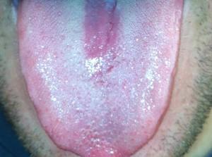 """איבחון קרהון בלשון. מחלת הקרהון יכולה להתפרץ עקב סטרס קיצוני ואפילו טראומה. ניתן לראות בלשון את מערכת העיכול המודלקת באדום בולט. צולם ע""""י חן אדדי."""